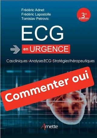 ECG en urgence: Cas cliniques - Analyses ECG -Stratégies thérapeutiques