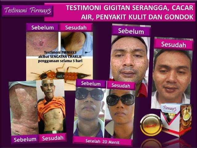 Testimoni Firmax3 Cream,Testimoni Firmax3,Firmax3 firming & lifting cream, firmax3 testimoni, kesaksian firmax3, manfaat firmax3, khasiat firmax3, cara menggunakan firmax3, firmax3 murah, firmax3 untuk lelaki, firmax3 harga, firmax3 cream