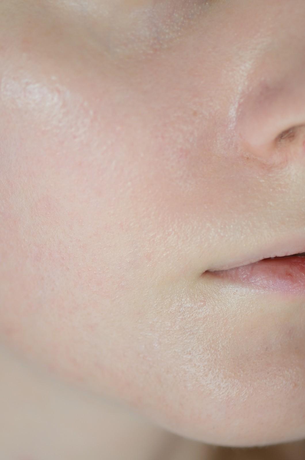 avene spray mgiełka z filtrem filtr bieli filtr dla skóry z trądzikiem