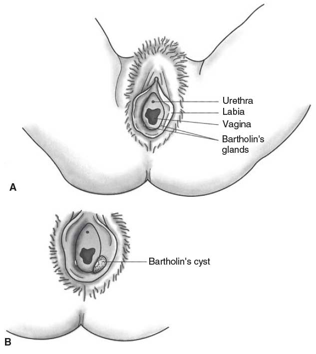 How to treat vaginal cysts