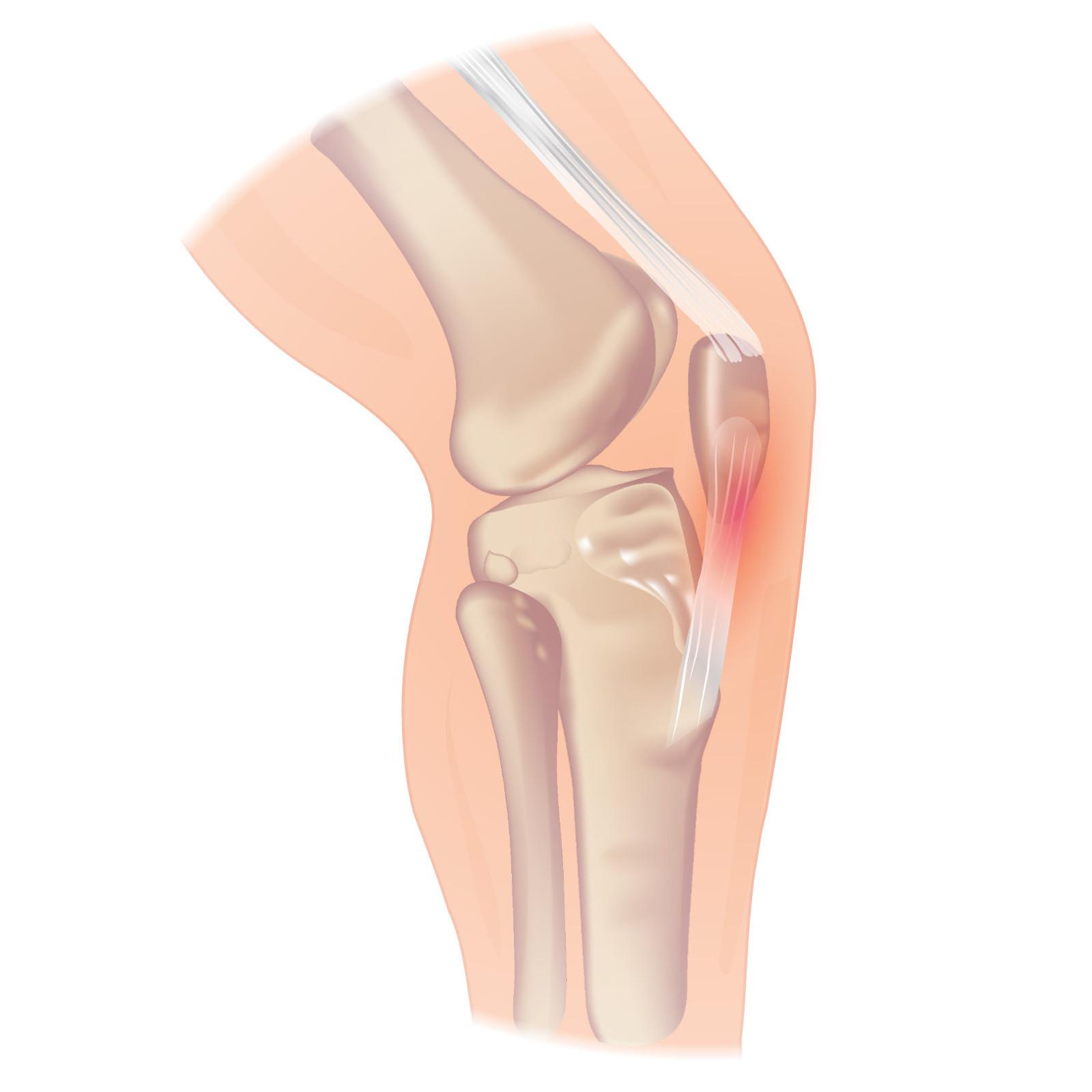 cum se tratează tendinoza genunchiului
