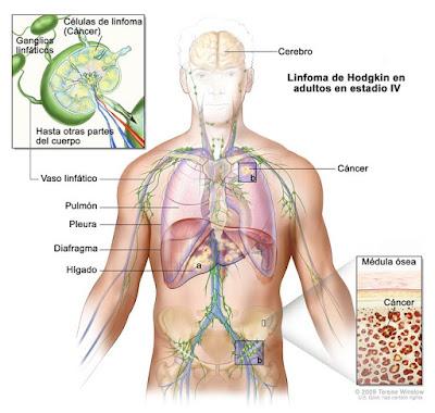 LINFOMA DE HODKIN un cancer maligno, estos ultimos años ha aumentado su incidencia en jovenes.APRENDE SU MANEJO,SINTOMAS,DIAGNOSTICO Y TRATAMIENTO..
