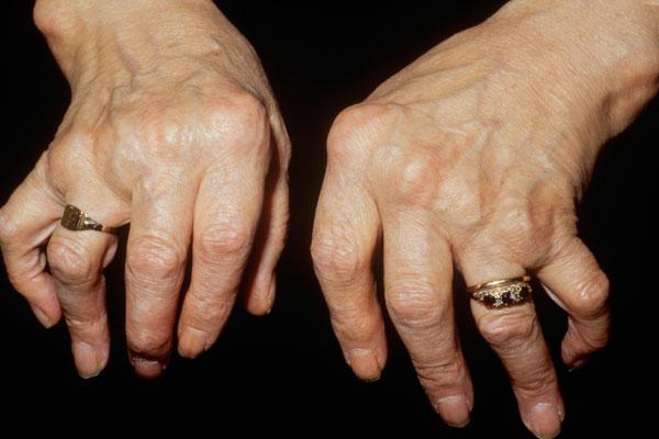 مضاعفات التهاب المفاصل