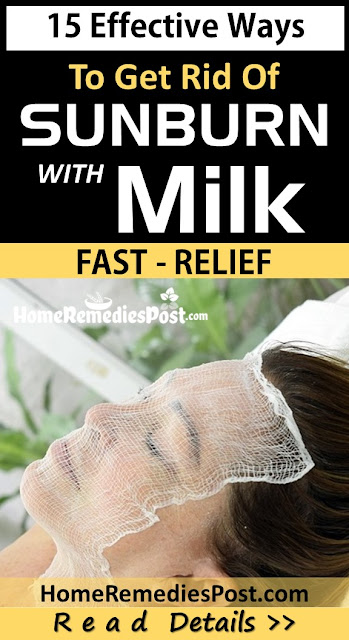 milk for sunburn relief, Home Remedies For Sunburn, how to treat sunburn, how to get rid of sunburn
