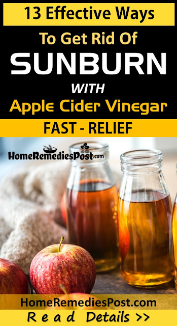 apple-cider-vinegar-for-sunburn, Sunburn Treatment, how to get rid of sunburn, home remedies for sunburn