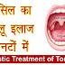 गले में टॉन्सिल के लक्षण पहचान कर तुरंत करें ये घरेलू उपचार