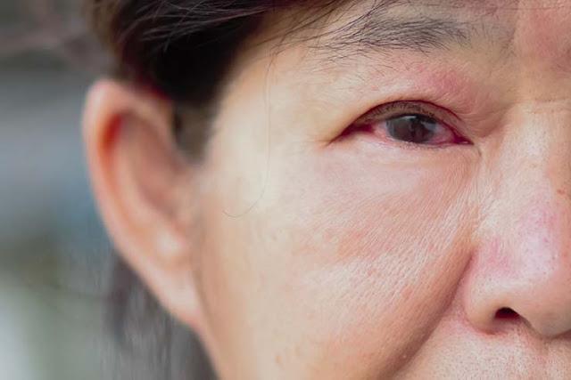 inner eyelid underneath