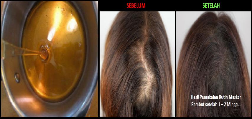 Image Result For Masker Rambut Untuk Ketombe