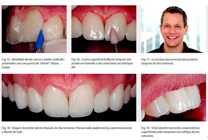 CASO CLÍNICO: Carillas directas para el diseño de la sonrisa en la región anterior - Dr. Michael Dieter,