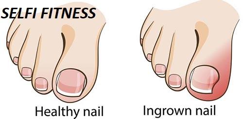ingrown toenail,ingrown toenails,how to get rid of ingrown toenail,ingrown toenail treatment,ingrown,toenail,ingrown toenail removal,toenails,ingrown toenail surgery,ingrown toenail cure,ingrown toenail symptoms,ingrown nail,recognizing the symptoms of an ingrown toenail,ingrown toenail causes,ingrown toenail cause,ingrown toe nail,people get their ingrown toenails removed,how to cut ingrown toenails