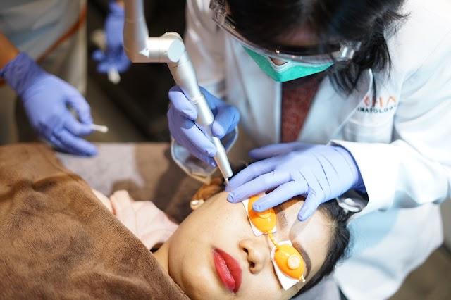 Mitos dan Fakta Laser Treatment di Klinik Spesialis Kulit