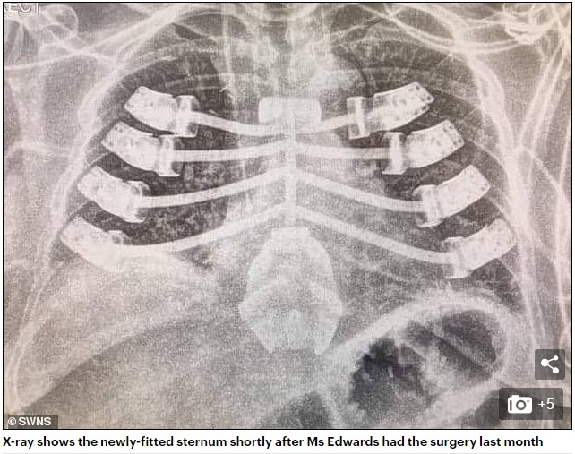 Grandmother, 52, is one of the first people in the world to have a 3D-printed sternum fitted