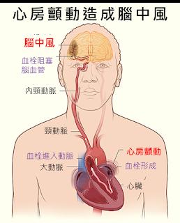 心房顫動造成腦中風