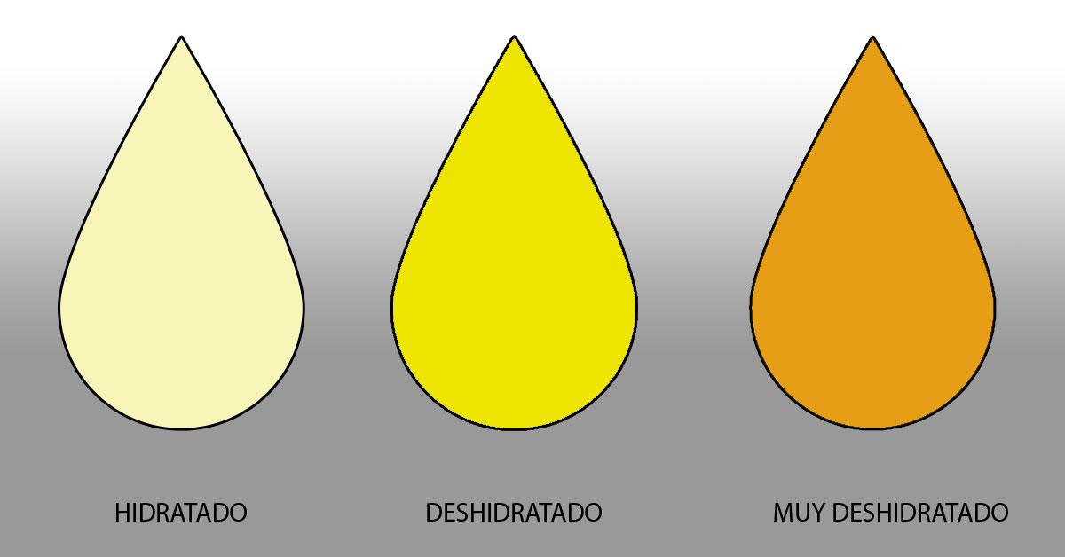 Orina amarilla oscura en el embarazo
