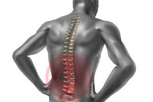 Obat Nyeri Tulang Belakang Sampai Ke Dada
