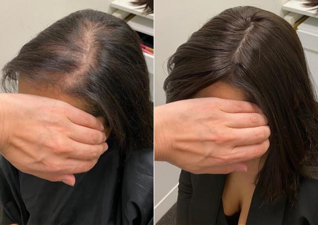 Les causes pour lesquelles le cuir chevelu fait mal, un symptôme d'alopécie?