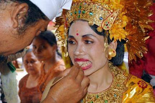 Bhatara: Tooth Traditions Of Adolescents Bali