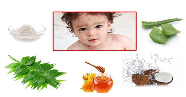 Remèdes naturels contre la varicelle