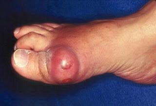 Proses Terjadinya Sakit ASAM URAT Tinggi / Gout