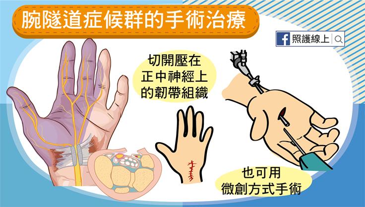 楊添麟醫師: 腕隧道癥候群免開刀的療法-針刀微創鬆解術