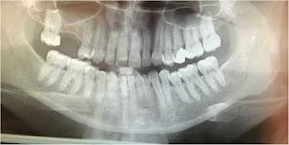 diş filmi