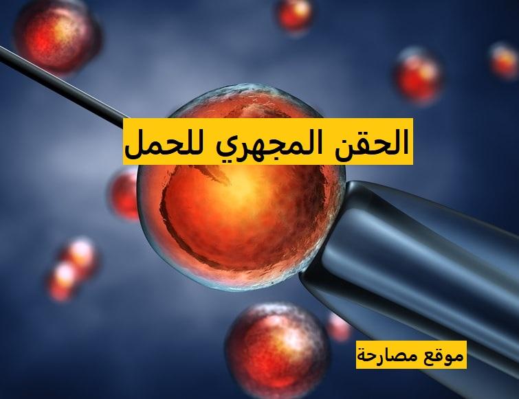 الحقن المجهري وتحديد نوع الجنين