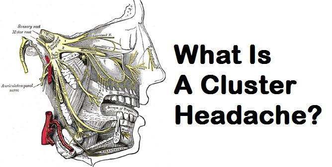 What Is A Cluster Headache