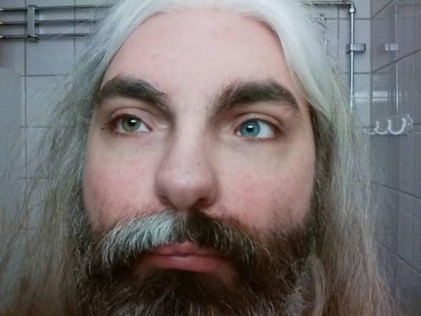 Pria Yang Mengalami Sindrom Waardenburg, Yang Membuatnya Tuli Di Satu Telinga, Membuat Rambutnya Menjadi Putih Dan Membuat Mata Dengan Warna Yang Berbeda