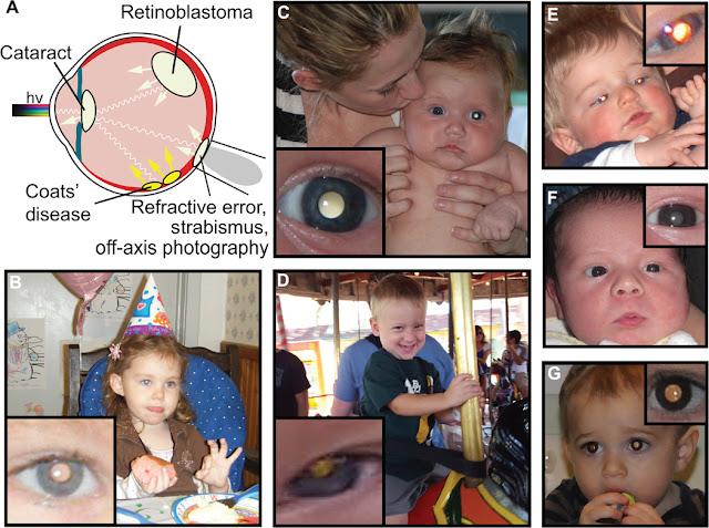 AI photo app can early detect dreaded Leukocoria, Retinoblastoma(Rb), White Eye, Coats' disease etc