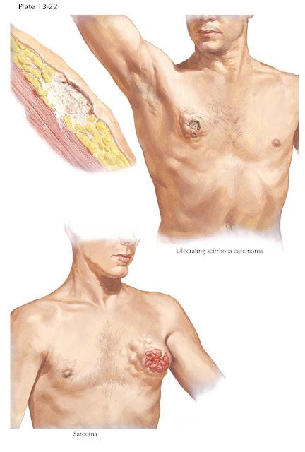 MALIGNANCIES OF MALE BREAST