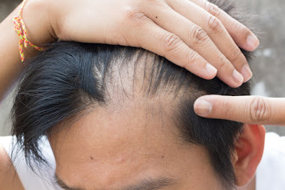 A man having hair loss