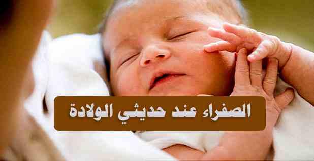 الصفراء عند الاطفال حديثي الولادة