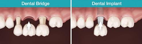 dental bridge or implant