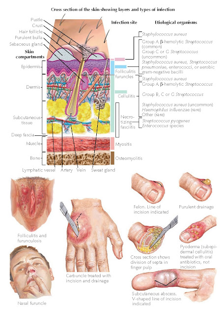 TYPES OF SKIN INFECTIONS