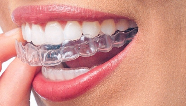 interesting facts about invisalign teeth straightening