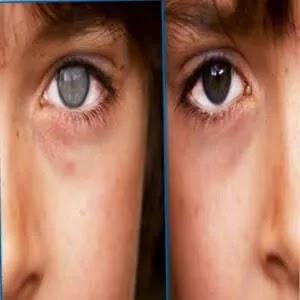 إعتام عدسة العين - الاعراض والعلاج