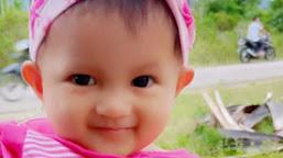 Kisah Munira, Batita Penderita Tumor Asal Aceh Selatan