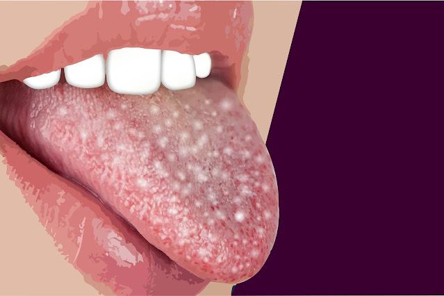 قد تكون بقعة على اللسان أحد أعراض السرطان