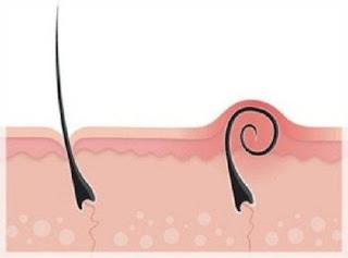 Comment en finir avec les poils incarnés naturellement