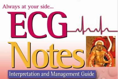 ECG Note by Shirley A. Jones, MS Ed, MHA, EMT-P