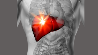 cleanse your liver the easiest way