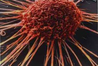 kanser hücresi