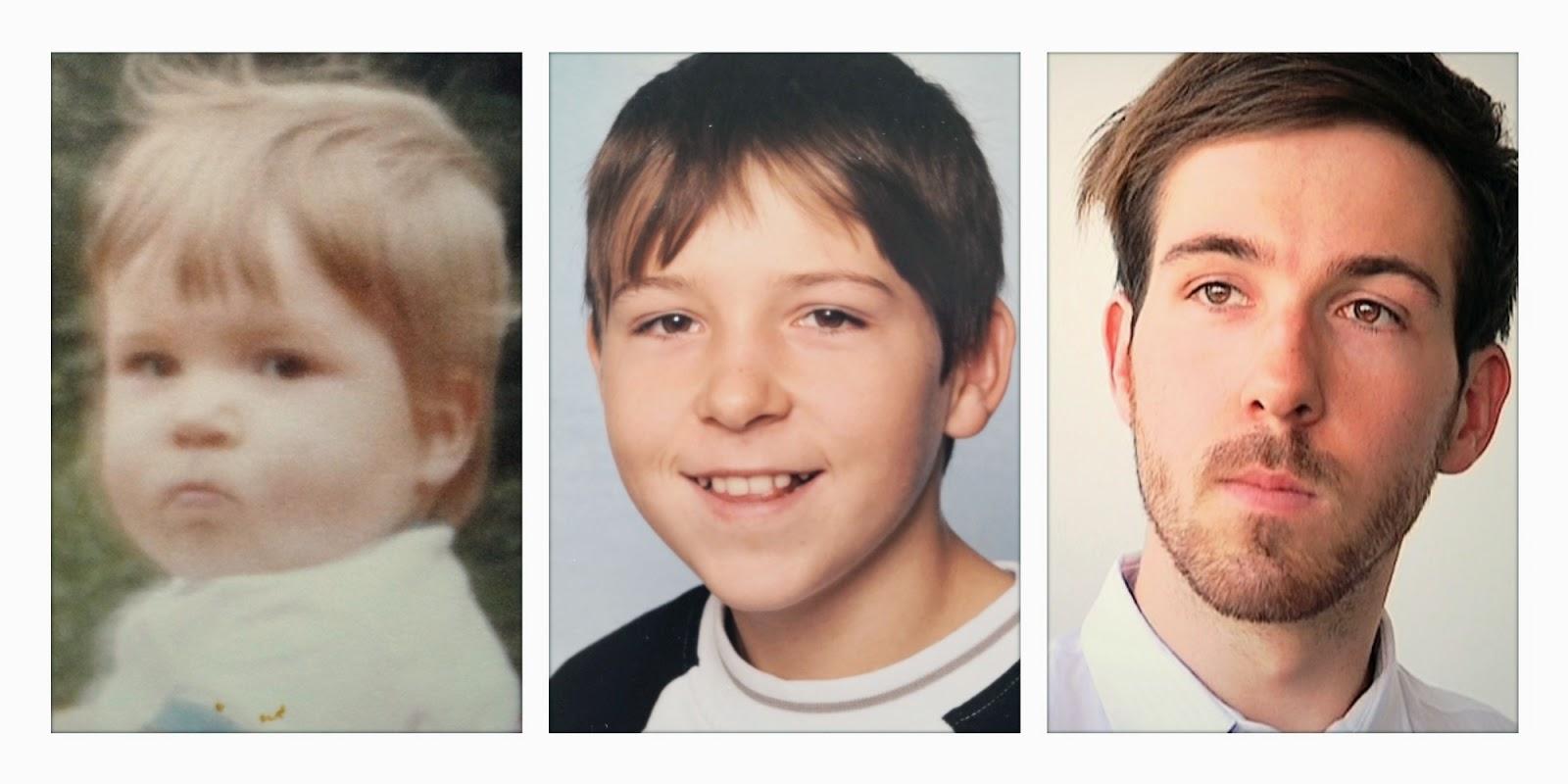 Hinzmann: Kindheit, Karriere und ADHS