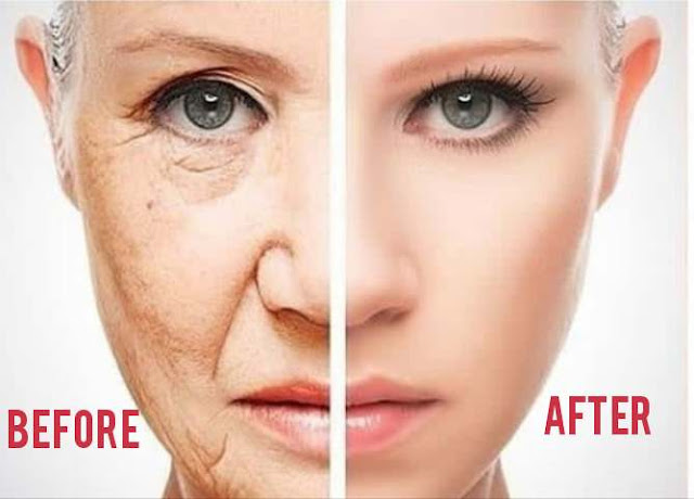 Facelift Diet: How ItHelps You Lose Weight and Remove Wrinkles