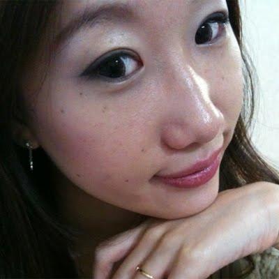 짱이뻐! - Natural Result Of Eyelid Surgery Boost Up My Confidence
