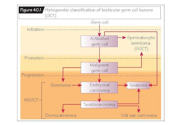 Testicular Tumors