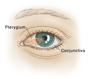 Conjunctival growth pterygium