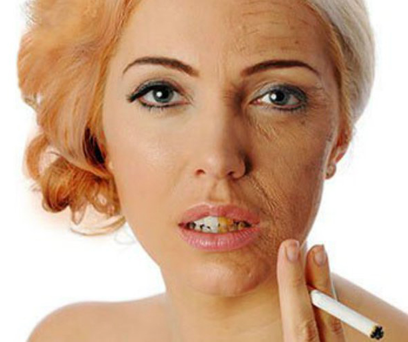 12 Ways Smoking Cigarettes Ruins Your Looks