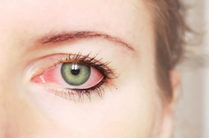 Don't be condemned! It's how to treat itchy eyes naturally