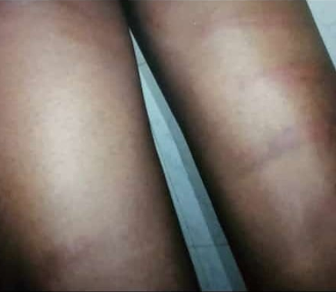 Nigerian Student says he was flogged by teachers for identifying as a Marlian